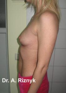 грудималі13