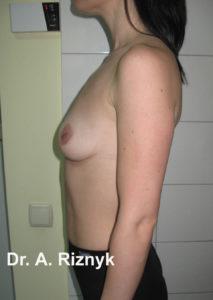 грудималі23