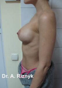 грудималі42