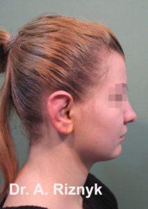 пластича хірургія. пластика вуха.