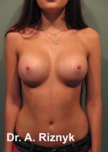 груди 12