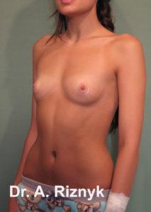 груди 13