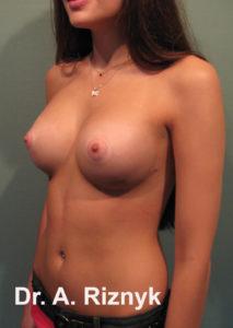 груди 14