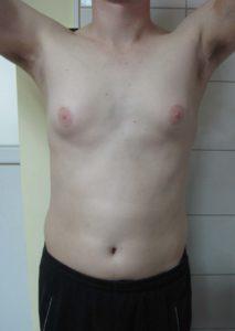Лікування гінекомастії у чоловіків та підлітків.