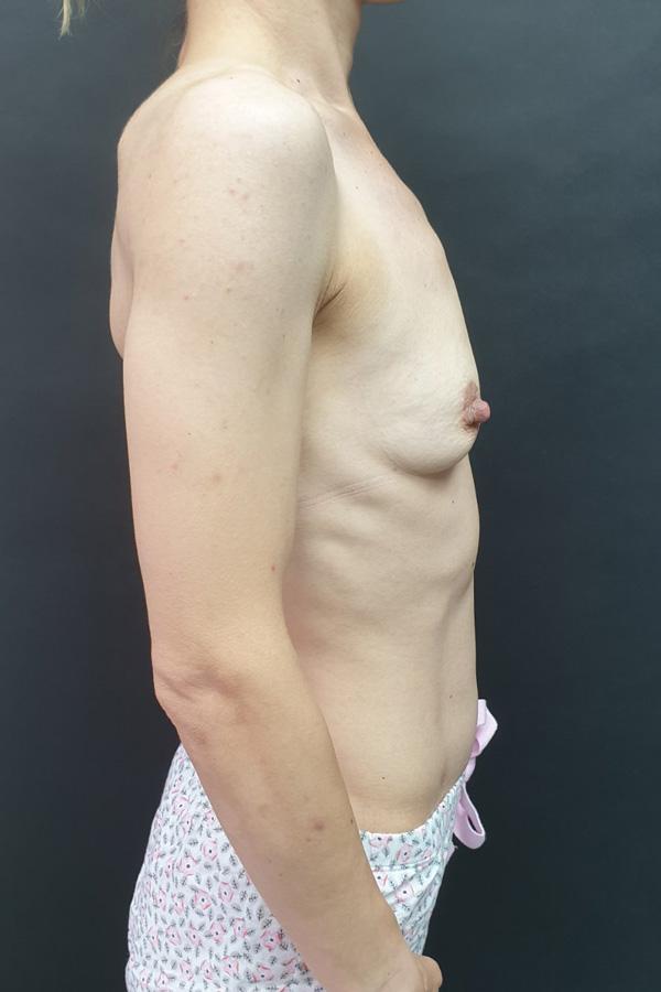 Збільшення грудей луцьк