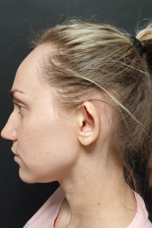 пластика вух чернівці результати