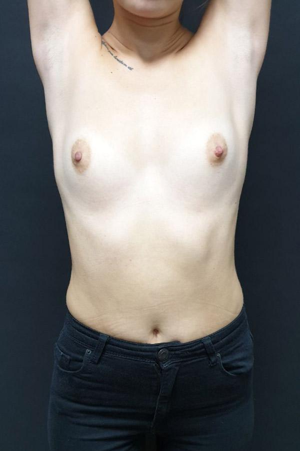 збільшення грудей фото до операції львів