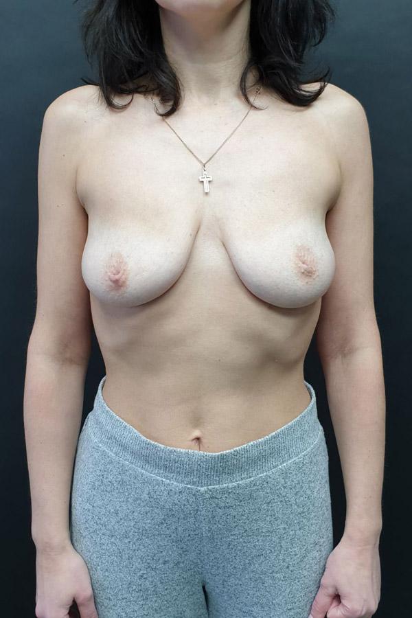 підтяжка грудей маммопластика