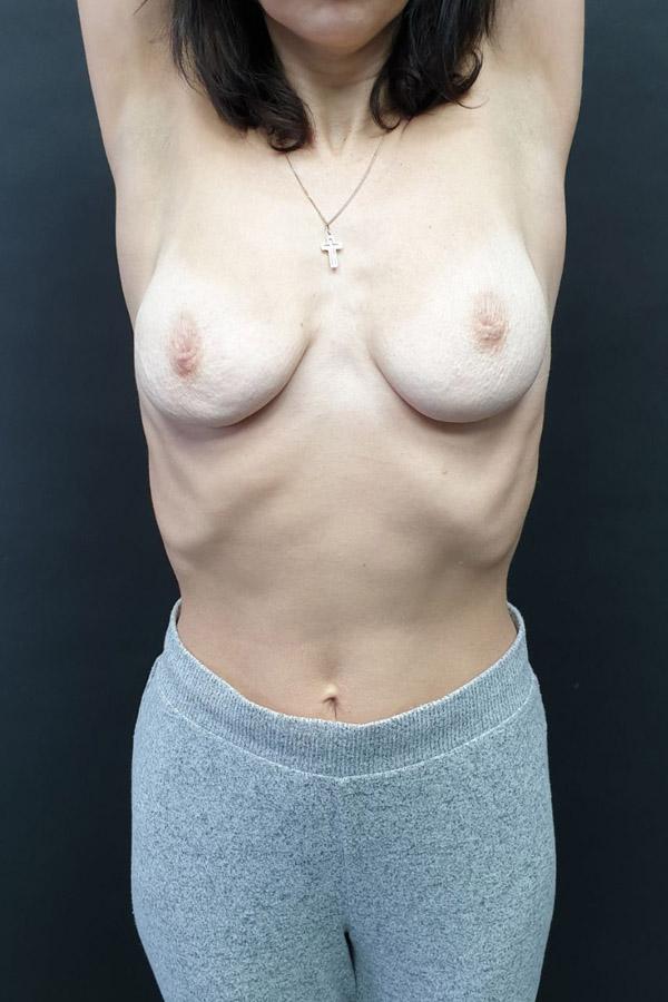 маммопластика та підтяжка грудей
