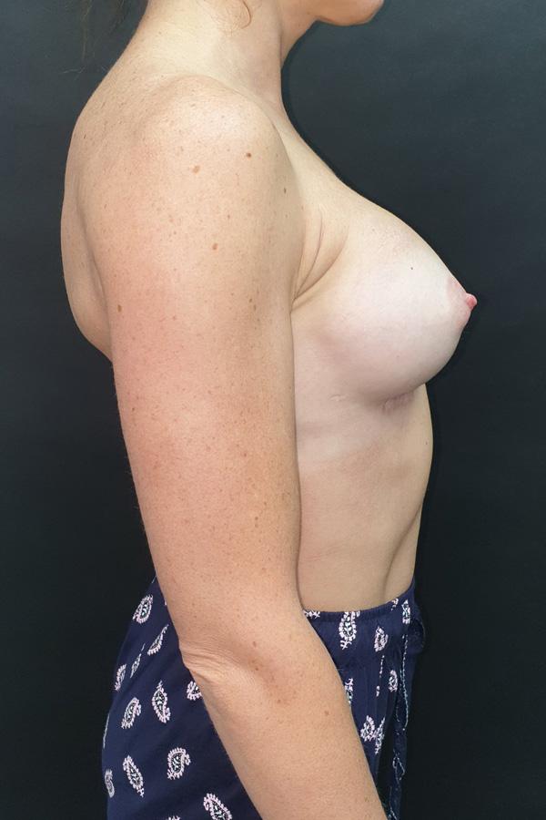 видалення грудних імплантів львів